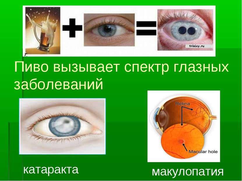 Пиво вызывает спектр глазных заболеваний катаракта макулопатия