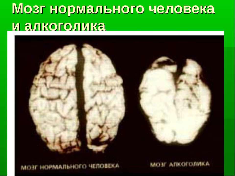 Мозг нормального человека и алкоголика