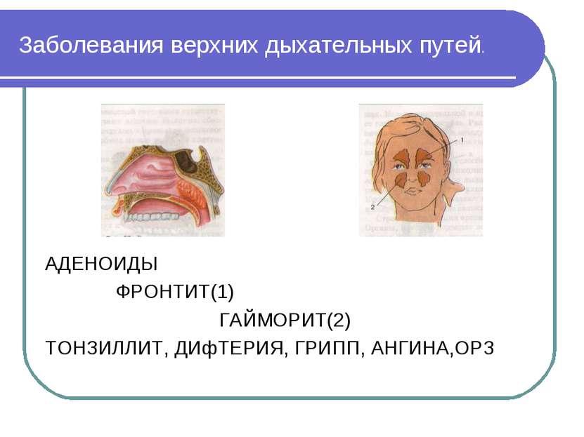 Заболевания верхних дыхательных путей. АДЕНОИДЫ ФРОНТИТ(1) ГАЙМОРИТ(2) ТОНЗИЛ...