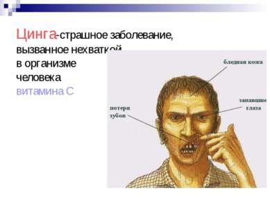 Цинга-страшное заболевание, вызванное нехваткой в организме человека витамина С