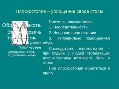 Плоскостопие – уплощение свода стопы Причины плоскостопия. 1. Наследственност...