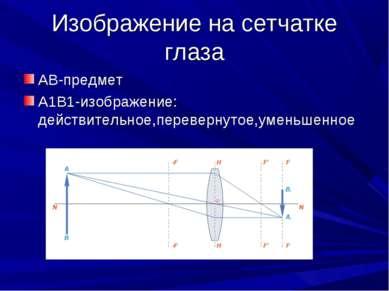 Изображение на сетчатке глаза АВ-предмет А1В1-изображение: действительное,пер...