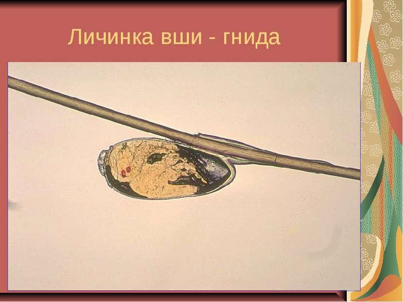 Личинка вши - гнида