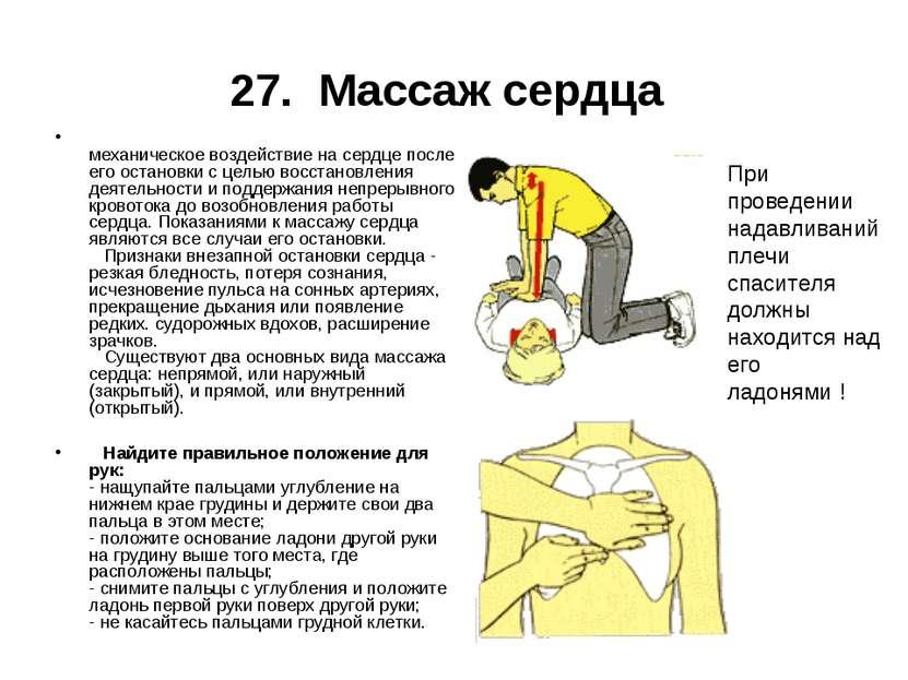27. Массаж сердца механическое воздействие на сердце после его остановки с це...