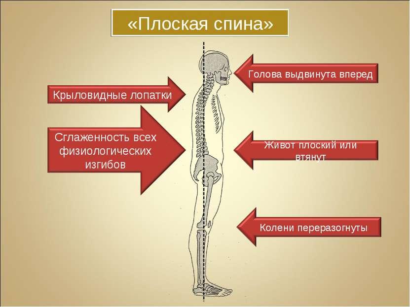 «Плоская спина»