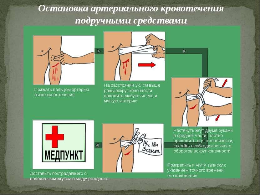 Остановка артериального кровотечения подручными средствами Прижать пальцем ар...