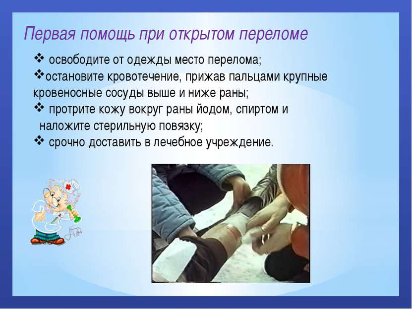 Первая помощь при открытом переломе освободите от одежды место перелома; оста...
