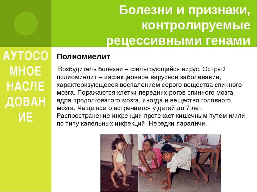 АУТОСОМНОЕ НАСЛЕДОВАНИЕ Полиомиелит Возбудитель болезни – фильтрующийся вирус...
