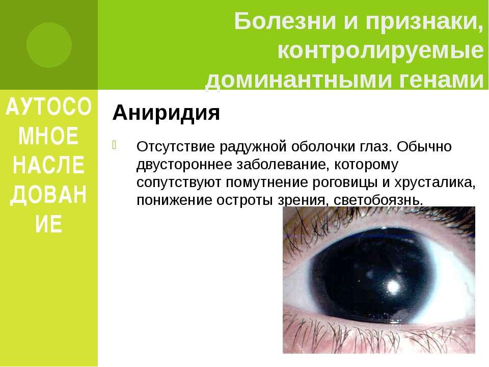АУТОСОМНОЕ НАСЛЕДОВАНИЕ Аниридия Отсутствие радужной оболочки глаз. Обычно дв...