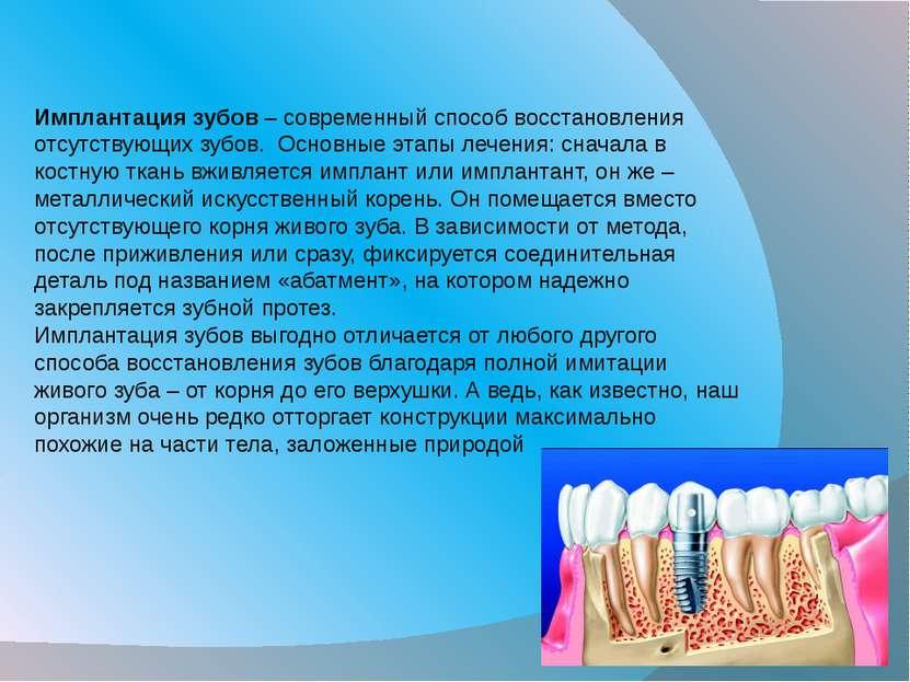 Имплантация зубов– современный способ восстановления отсутствующих зубов. О...