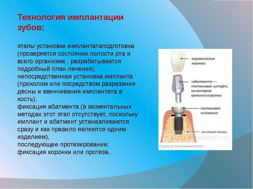 Технология имплантации зубов: этапы установки имплантатаподготовка (проверяет...