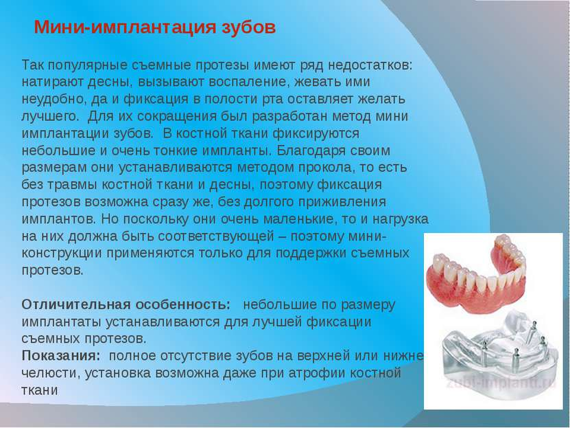 Мини-имплантация зубов Так популярные съемные протезы имеют ряд недостатков: ...