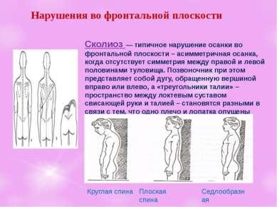 Нарушенияво фронтальнойплоскости Сколиоз— типичное нарушение осанкиво фро...
