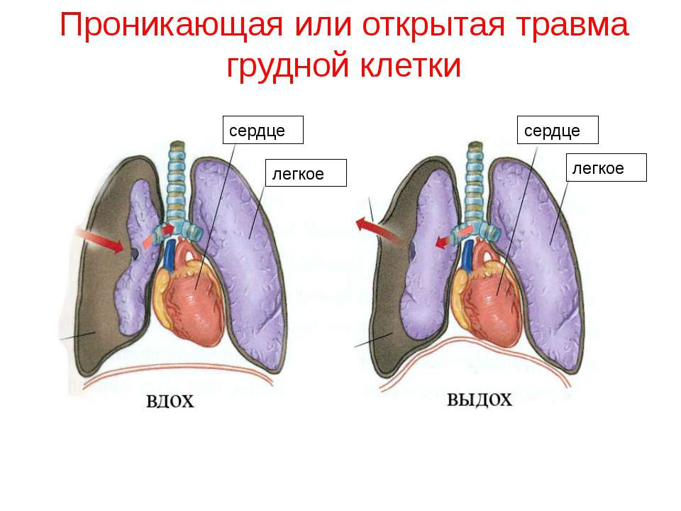 Проникающая или открытая травма грудной клетки сердце легкое легкое сердце