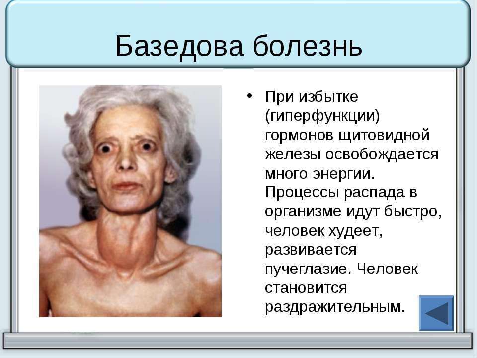Базедова болезнь При избытке (гиперфункции) гормонов щитовидной железы освобо...