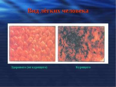 Вид лёгких человека Здорового (не курящего) Курящего