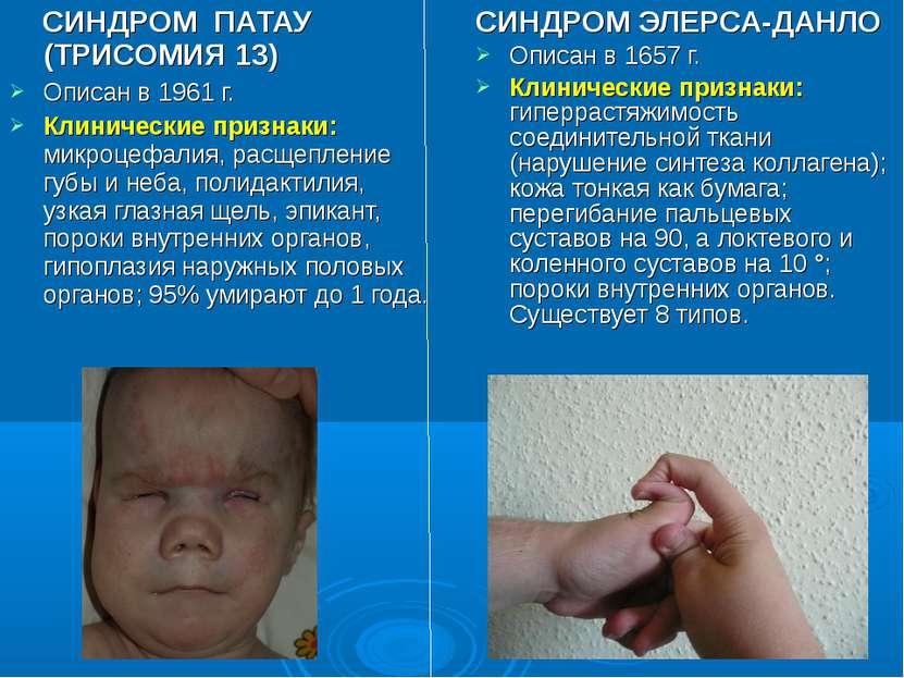 СИНДРОМ ПАТАУ (ТРИСОМИЯ 13) Описан в 1961 г. Клинические признаки: микроцефал...