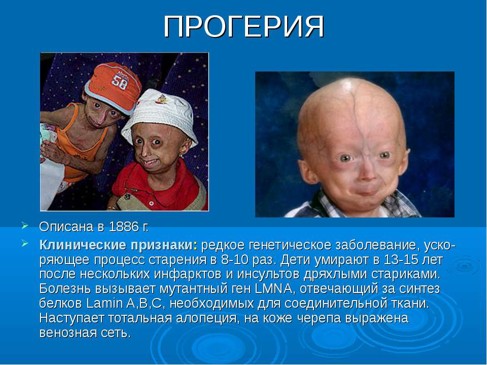 progeria essay clearly describes genetic disease progeria View essay - biology progeria essay from biology biology at bowie high school progeria progeria, or hutchinson-gilford syndrome, is an extremely rare autosomal dominant genetic disorder.
