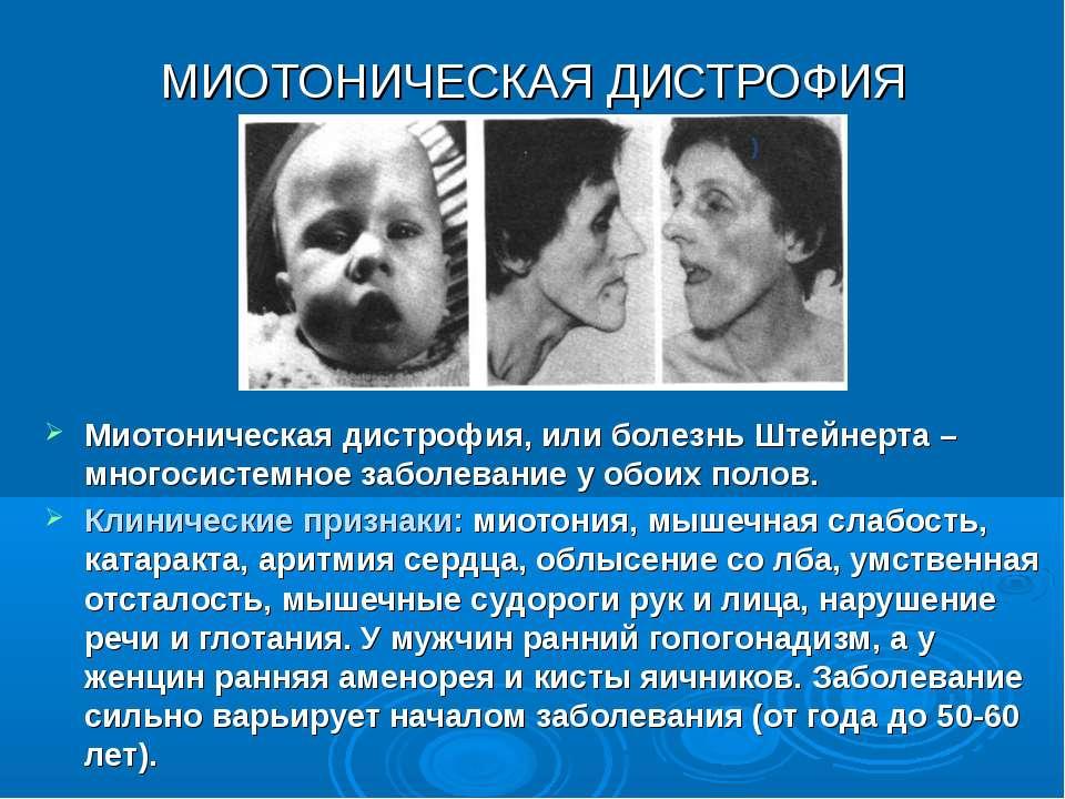МИОТОНИЧЕСКАЯ ДИСТРОФИЯ Миотоническая дистрофия, или болезнь Штейнерта – мног...