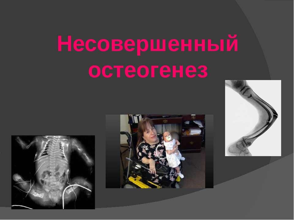 Несовершенный остеогенез
