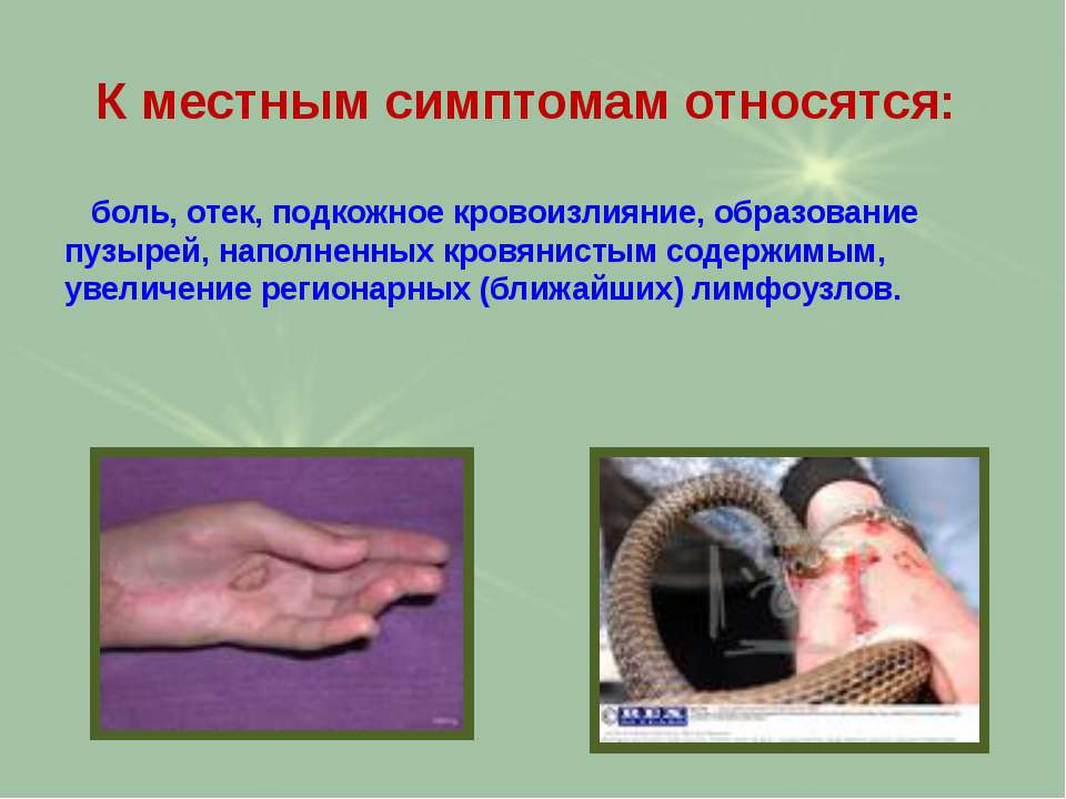 К местным симптомам относятся: боль, отек, подкожное кровоизлияние, образован...