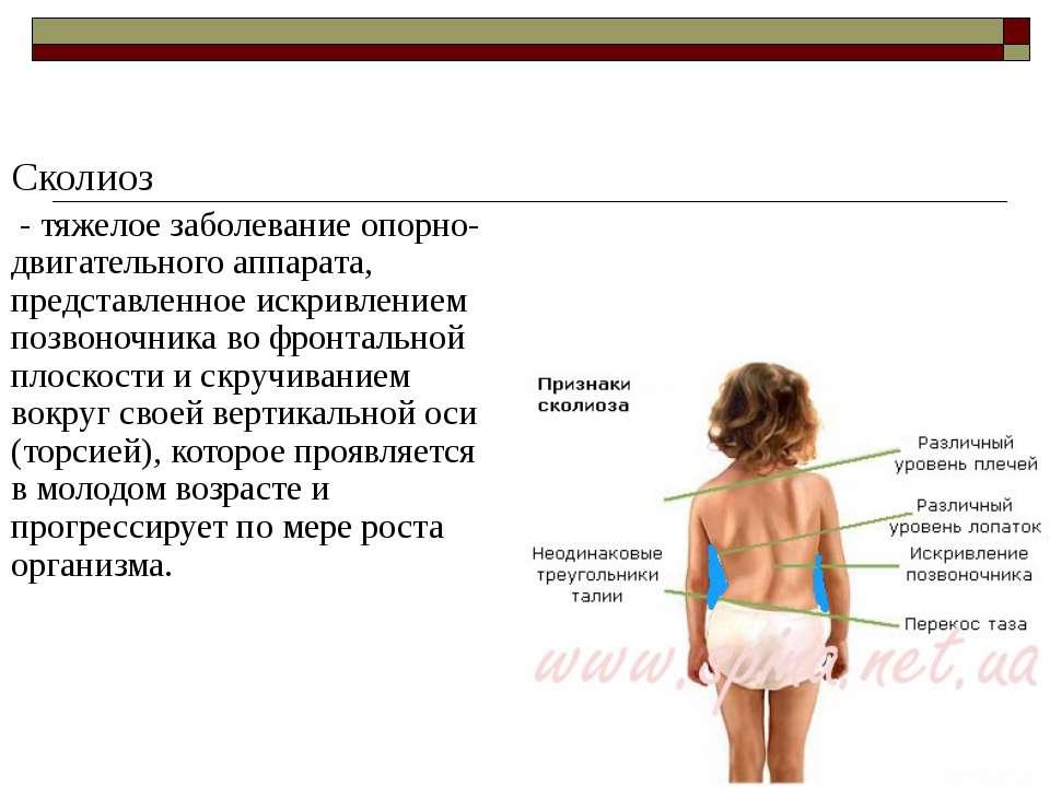 Сколиоз - тяжелое заболевание опорно-двигательного аппарата, представленное и...
