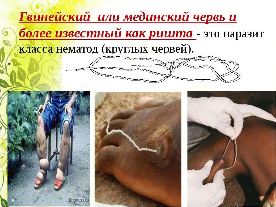 Гвинейский или мединский червь и более известный как ришта - это паразит клас...
