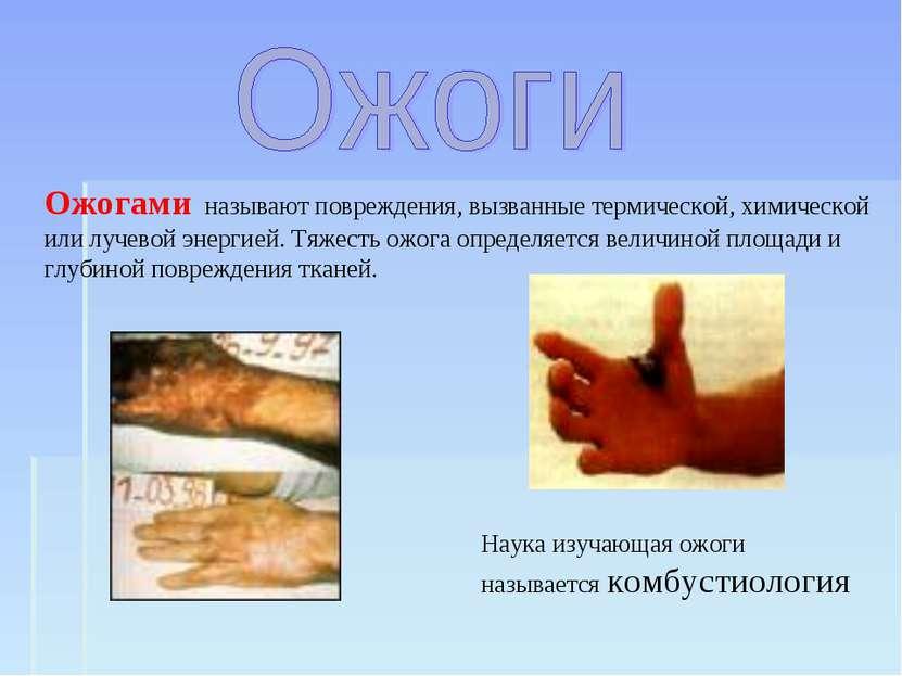 Ожогами называют повреждения, вызванные термической, химической или лучевой э...