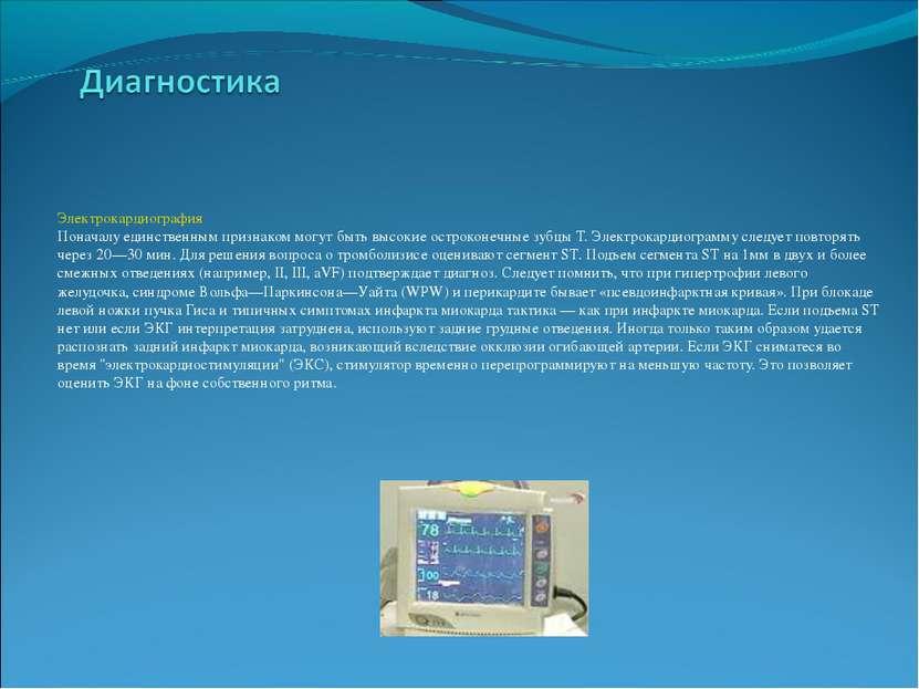 Электрокардиография Поначалу единственным признаком могут быть высокие острок...