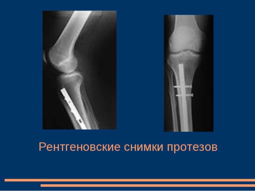 Рентгеновские снимки протезов