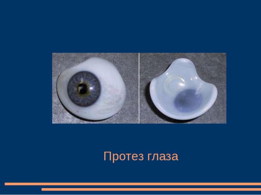 Протез глаза