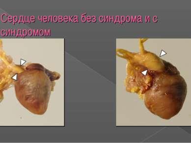 Сердце человека без синдрома и с синдромом