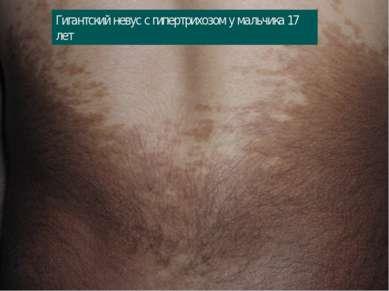 Гигантский невус с гипертрихозом у мальчика 17 лет
