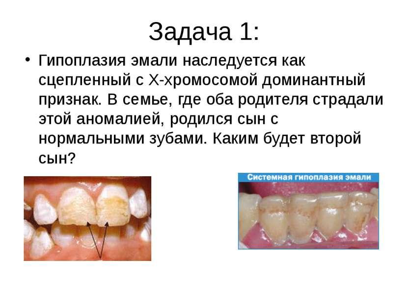 Задача 1: Гипоплазия эмали наследуется как сцепленный с Х-хромосомой доминант...