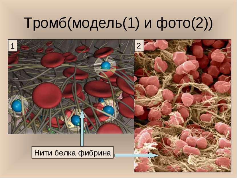 Тромб(модель(1) и фото(2)) Нити белка фибрина