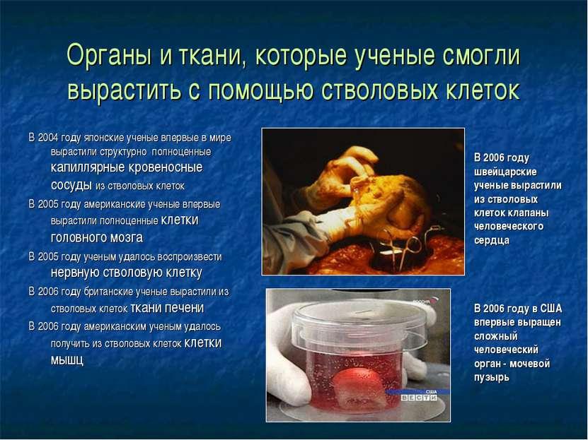 Органы и ткани, которые ученые смогли вырастить с помощью стволовых клеток В ...