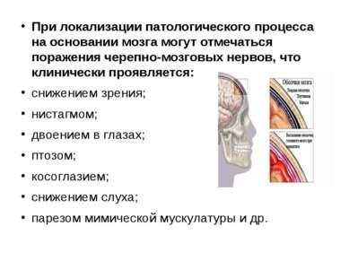 При локализации патологического процесса на основании мозга могут отмечаться ...