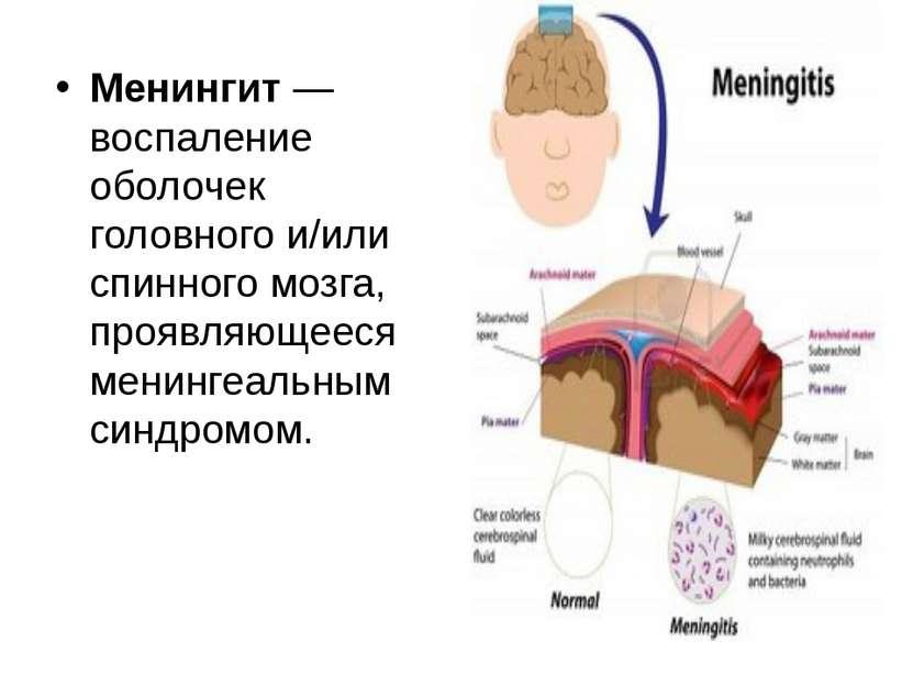 Менингит — воспаление оболочек головного и/или спинного мозга, проявляющееся ...