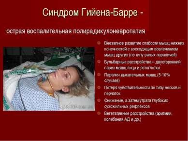 Синдром Гийена-Барре - острая воспалительная полирадикулоневропатия Внезапное...