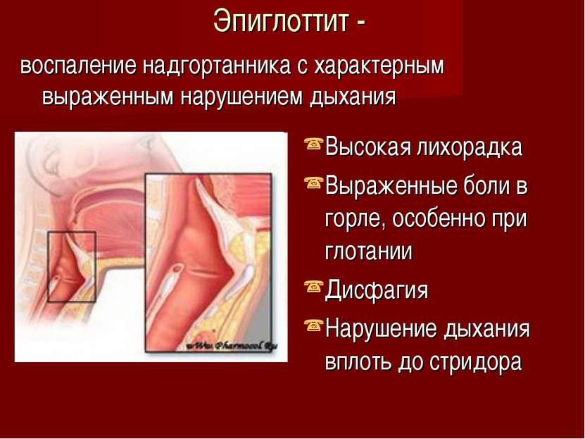 Эпиглоттит - воспаление надгортанника с характерным выраженным нарушением дых...