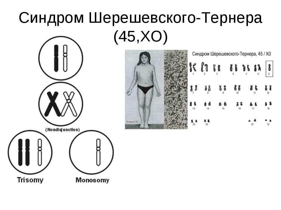 Синдром Шерешевского-Тернера (45,ХО)
