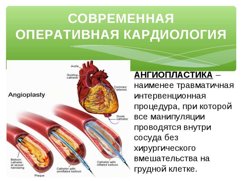 СОВРЕМЕННАЯ ОПЕРАТИВНАЯ КАРДИОЛОГИЯ АНГИОПЛАСТИКА – наименее травматичная инт...