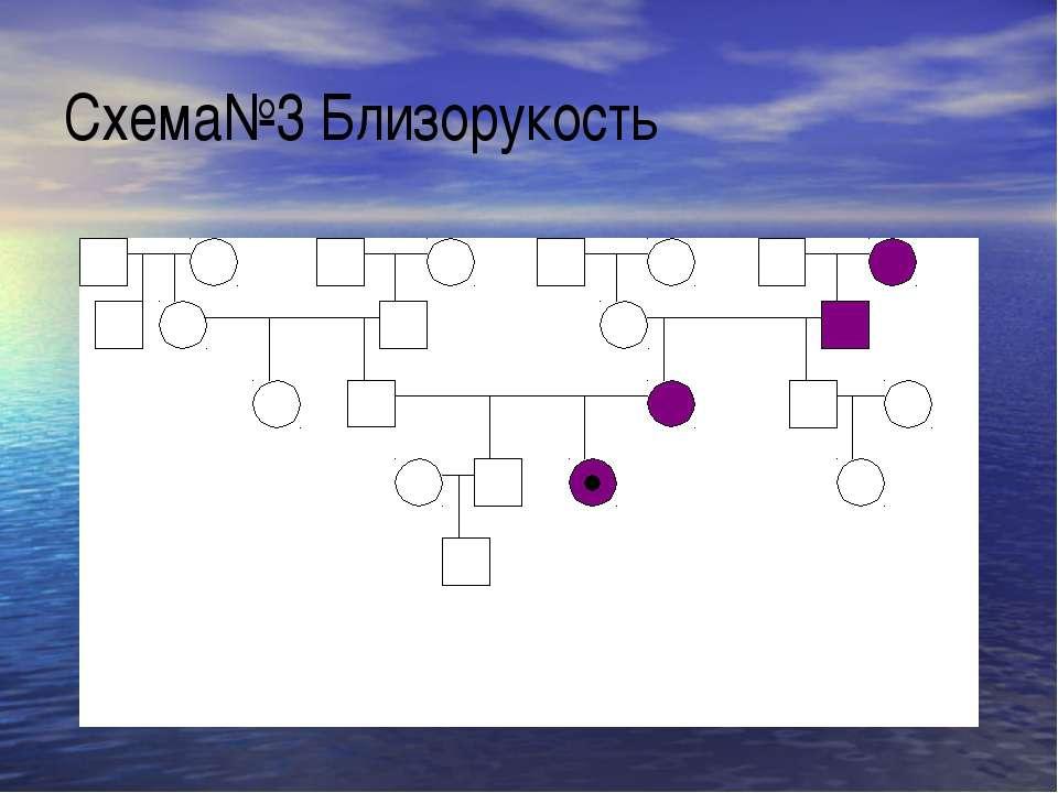 Схема№3 Близорукость