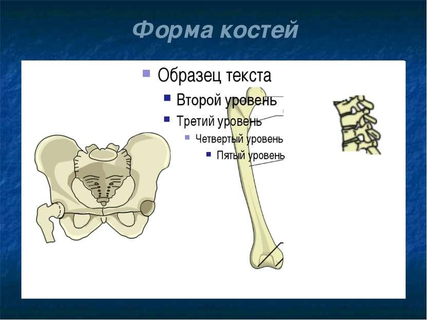 Форма костей