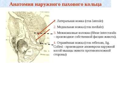 Анатомия наружного пахового кольца 1. Латеральная ножка (crus laterale) 2. Ме...