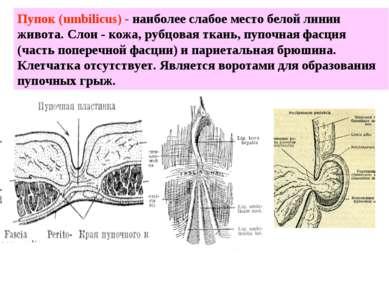 Пупок (umbilicus) - наиболее слабое место белой линии живота. Слои - кожа, ру...