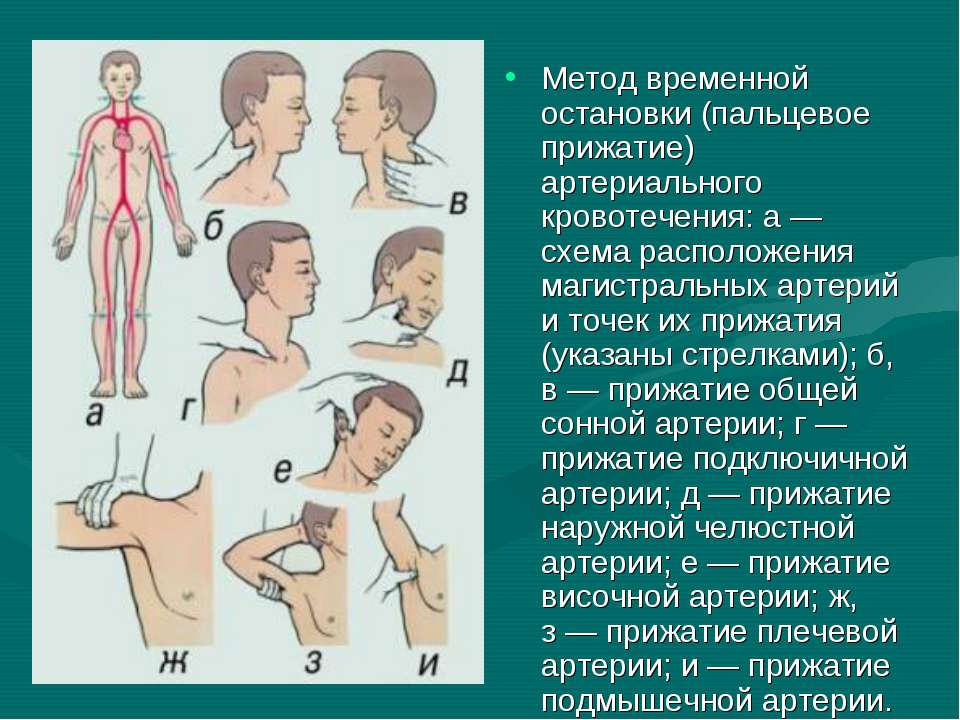 Метод временной остановки (пальцевое прижатие) артериального кровотечения: а...