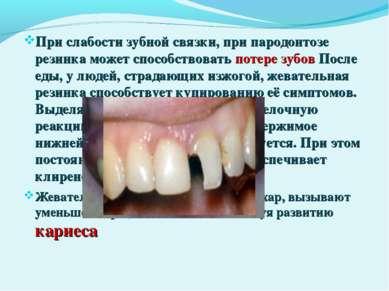 При слабости зубной связки, при пародонтозе резинка может способствовать поте...