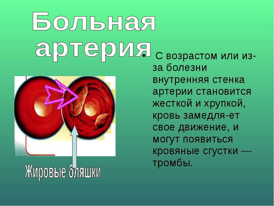 С возрастом или из-за болезни внутренняя стенка артерии становится жесткой и ...