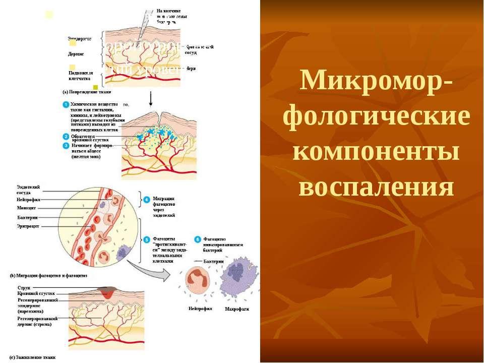 Микромор-фологические компоненты воспаления